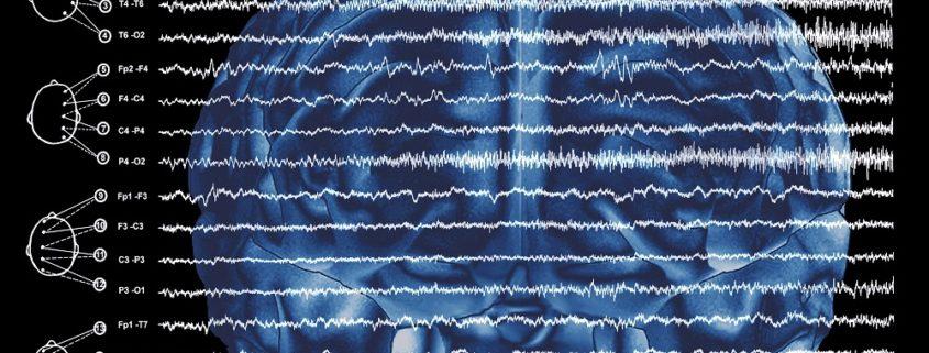 Treatment of Epilepsy