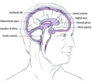 Posttraumatic Hydrocephalus