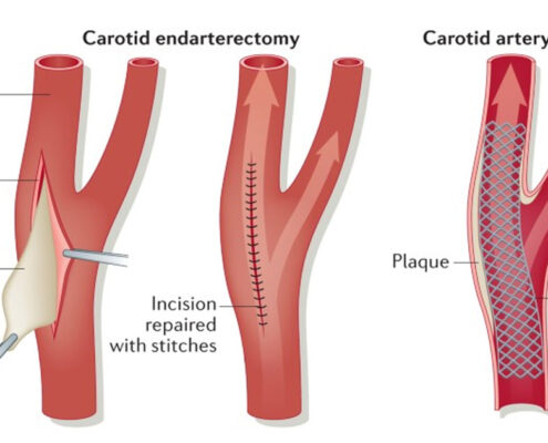 Complications of Carotid Endarterectomy
